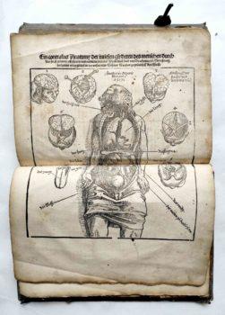 Lorenz Fries Spiegel der Arznei Medizin Anatomie Heilkunde Mittelalter Holzschnitt Anatomie Innere Organe